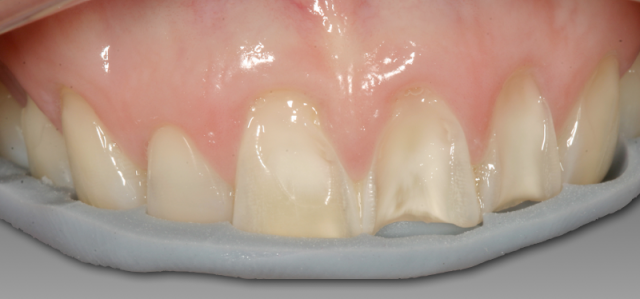 Diagnostic Wax-Up Fabrication: Periodontal and Implant Treatment
