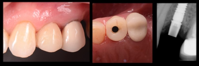 Restoration of a Single Tooth Implant Utilizing E-Max CAD Milled With CEREC