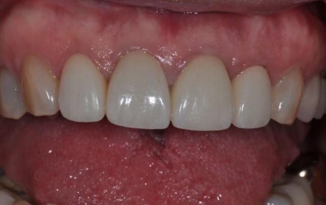 Collaborative Endodontics and Restorative Dentistry