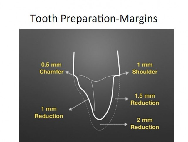 Crown Margin Preparation - Tools of the Trade