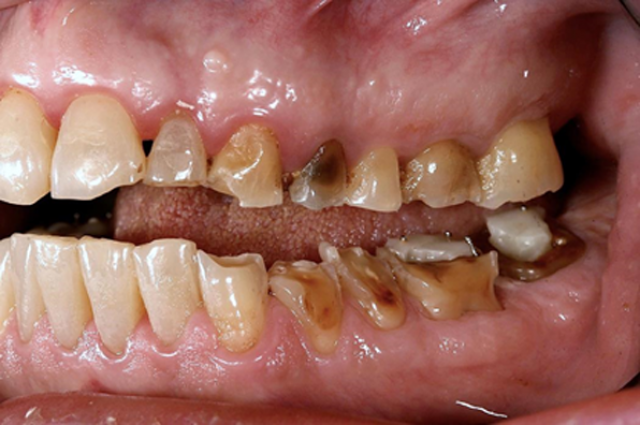 Spear Releases Study Club Module On Interdisciplinary Treatment of Dental Erosion