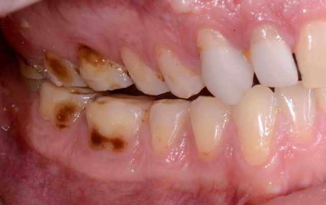 Extrinsic Dental Erosion - Causes and Diagnosis