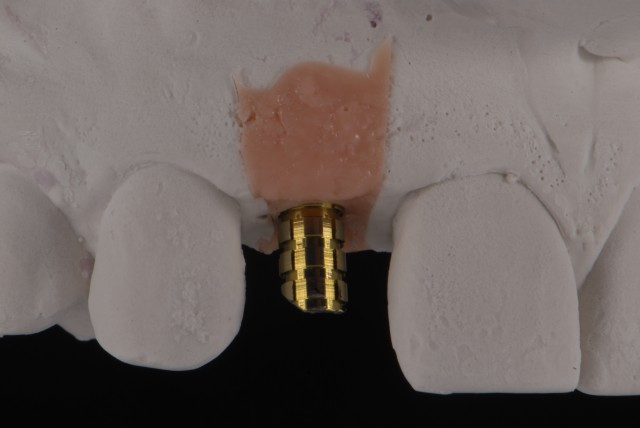 Fabrication of a Single-Tooth Implant Provisional Restoration - a Visual Essay