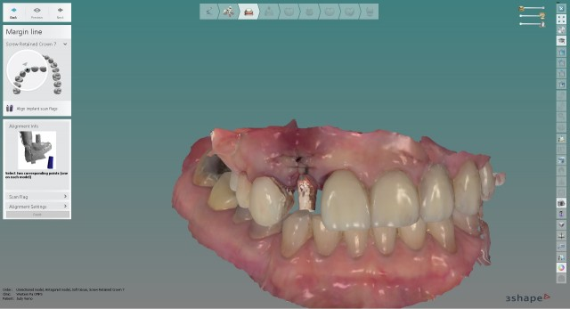 Digital Scanning of Implants By Specialists