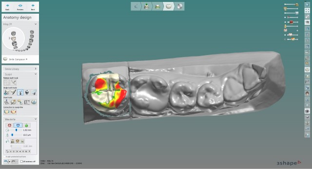 How Dentist-Laboratory Relations Are Changing in the Digital Age