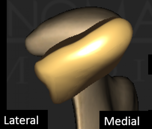 How Do We Approach Cases With Clicking Jaw Joints?