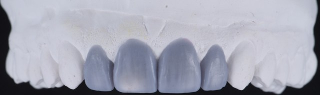 Optimal Smile Design Utilizing the Most Conservative Approach - a Visual Essay