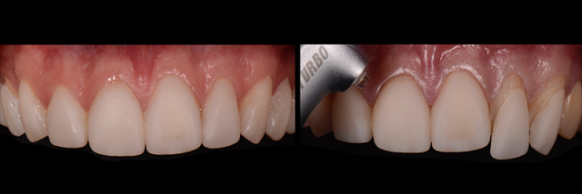 Utilizing Laser to Remove Ceramic Veneers