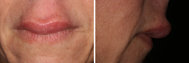 Spear Talk Highlight – What is the Cause of My Patient's Swollen Lip?