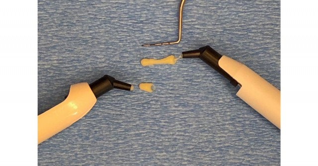Heated Composite for Efficient Restorations