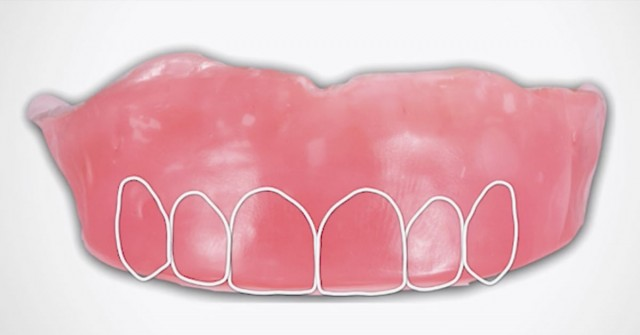 New Course: The 5-Step Approach to Fabricate Conventional Dentures