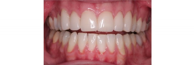 Functional Incisal Edges: Managing the Incisal Guidance