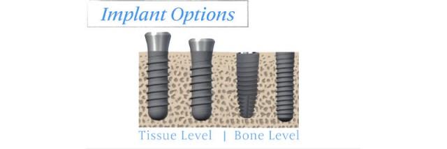 Contemporary Implant Dentistry: Diagnostic Risk Management