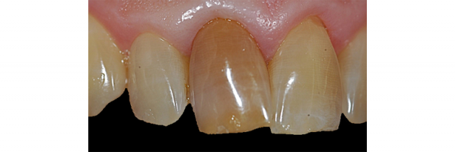 Study Club Module: Treatment Planning Dark Teeth in the Esthetic Zone