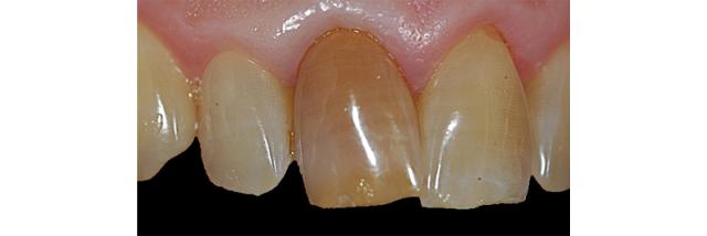 Study Club Module: Treatment Planning Dark Teeth in the Esthetic Zone