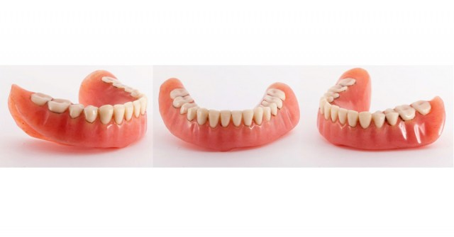 Options for Determining Vertical Dimension with Edentulous Patients (Part 2)