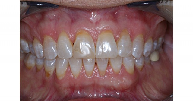Study Club Module: Treatment Options for Injured Jaw Joints