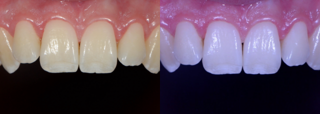 White Balance – the Unsung Hero in Dental Photography