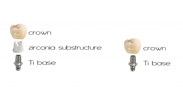 Bonding a Titanium Base to an Implant Abutment or Crown: Is There an Optimal Material and Technique?