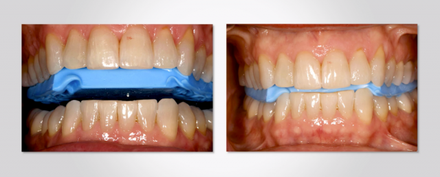 Dr. Frank Spear Releases 3 New Occlusion Courses