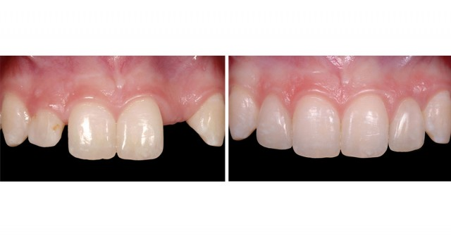 Study Club Module: Managing the Unesthetic Single Tooth Implant