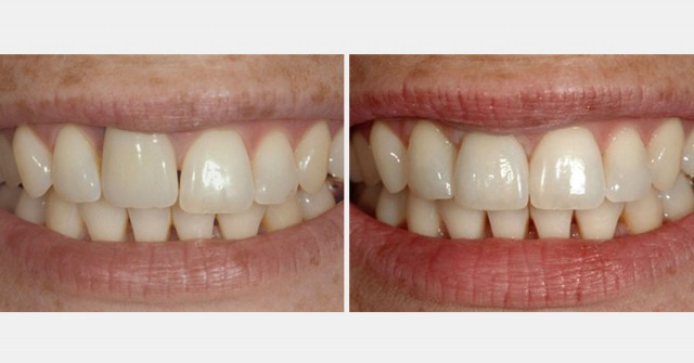 Study Club Module: Managing Patients with Apically Positioned Gingiva