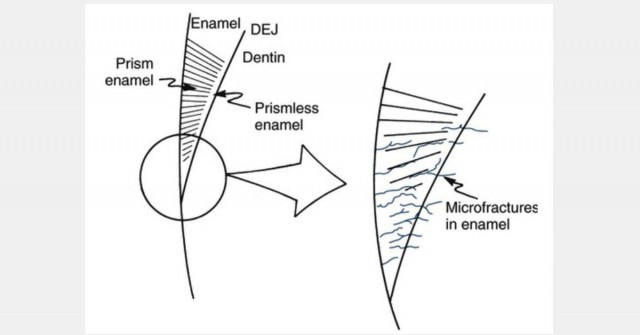 Predictable Ceramic Veneer Margins - Eliminate Unsupported Enamel with 'Tornado Technique'