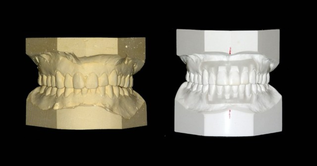 New Course: Using Models to Evaluate and Treatment Plan Occlusal Issues