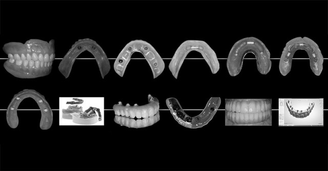'Edentulous Arch' Workshop Crystalizes Restorative Options