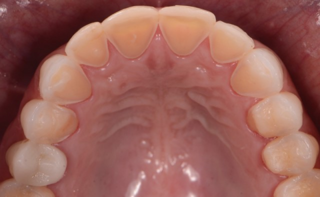 Intrinsic Dental Erosion - Causes and Diagnosis