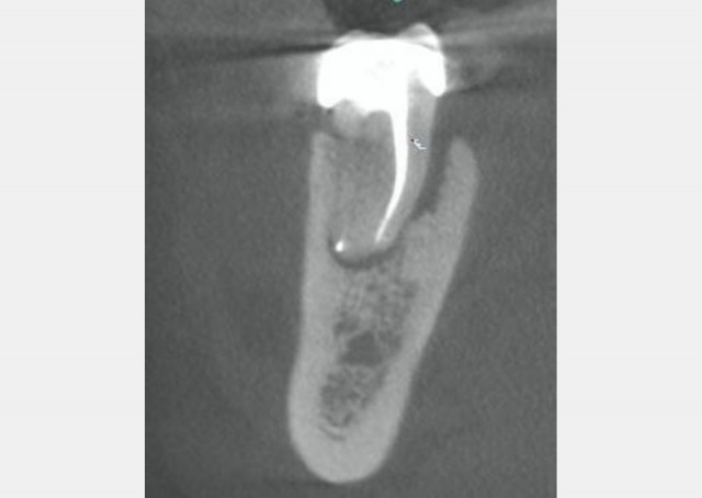Vertical Root Fractures - The Diagnostic Dilemma and Hidden Menace