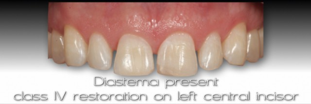 Managing Open Interdental Spaces with Indirect Veneer Restorations – The Interdental Finish Line (Part 1)