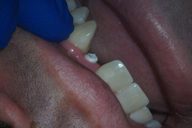 When to Use Zirconia Abutments