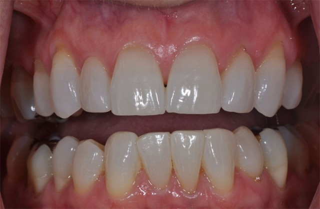 Dental 'Cloacopapyrology' – Integrating Basic Photography