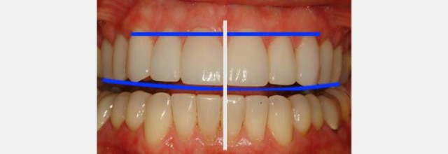 Dental 'Cloacopapyrology' – Planning the Smile