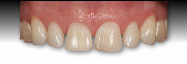 Managing Open Interdental Spaces with Indirect Veneer Restorations: Communication with the Dental Technician (Part 4)