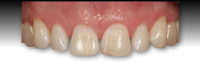 Managing Open Interdental Spaces with Indirect Veneer Restorations: Veneer Insertion (Part 5)