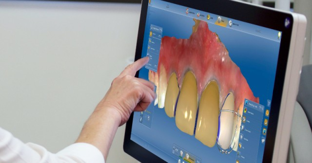 3 Dental Lab Perspectives on Industry Trends