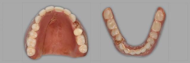 Using the Matrix Technique for Repairing Debonded Denture Teeth