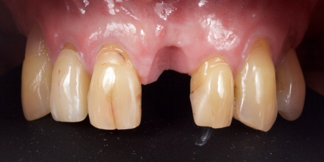 Lithium Disilicate Resin-Retained Adhesive Bridgework in Fixed Prosthodontics