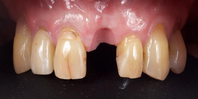 Lithium Disilicate Resin-Retained Adhesive Bridgework in Fixed Prosthodontics