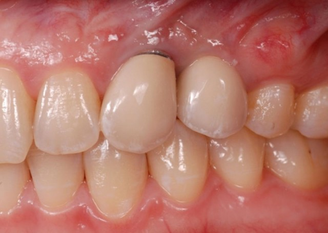 Dentist or Technician: Who Chooses the Implant Abutment?