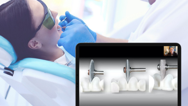 New Course: Managing Open Interdental Spaces with Indirect Veneers