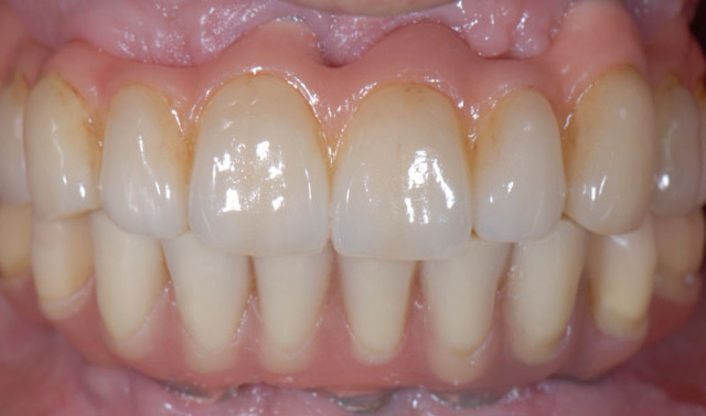 A Simple Way to Fix Porcelain Chipping in a Full Arch Implant-Supported Prosthesis