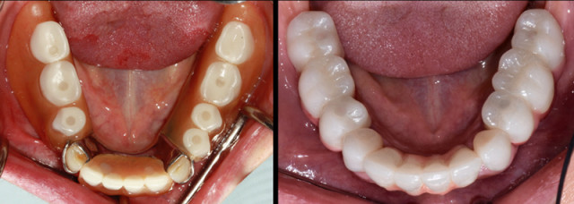 Connections Between Tooth Loss and Systemic Disease