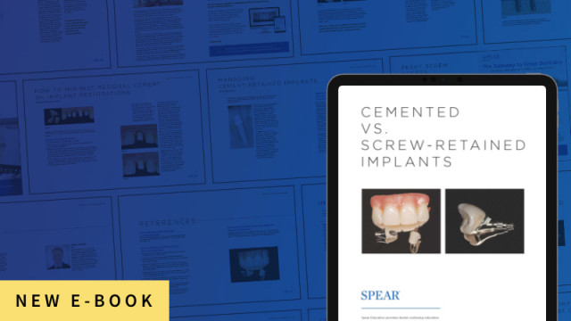 New E-Book: 'Cemented vs. Screw-Retained Implants'