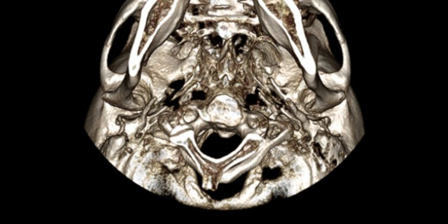 Patient History 101 (Lesson 4): Jaw Joint Pain