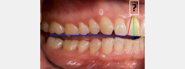 Photographic Tooth Inclination