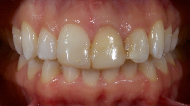 Ultra-Conservative Management of the Discolored Tooth