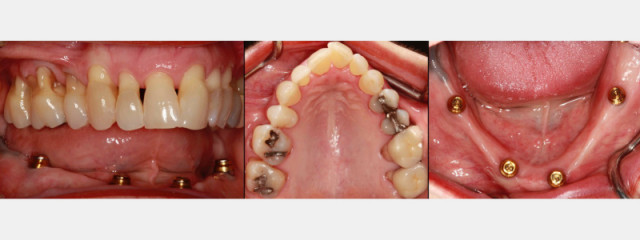 Advantages of Mandibular Locator Overdentures